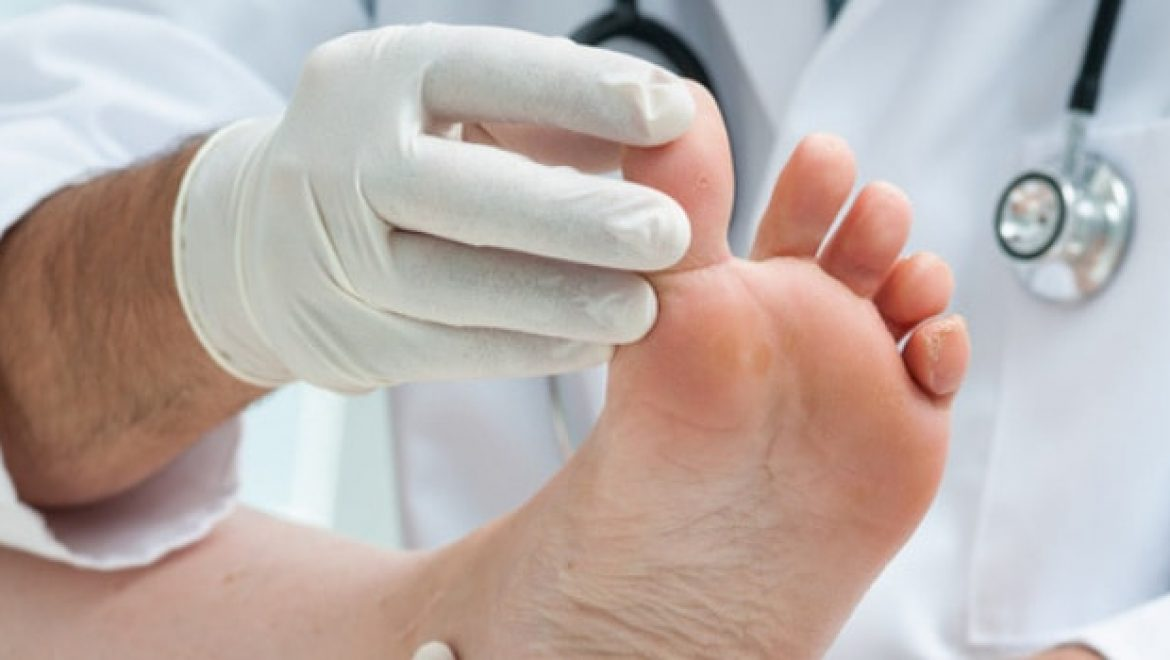 How to Tell the Difference Between a Sprained Toe and Broken Toe